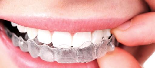 En Tandretning gør mange glade i dag